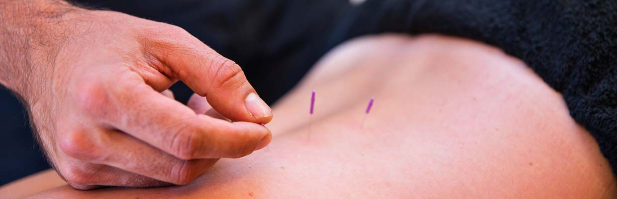 Dry Needling in Bournemouth